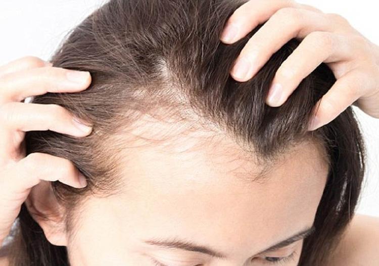 Kết hợp dầu gội trị rụng tóc tốt nhất