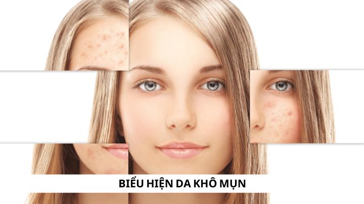 Biểu hiện của làn da khô mụn
