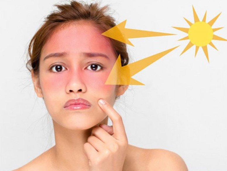 ánh nắng mặt trời tác hại xấu đến thâm mụn