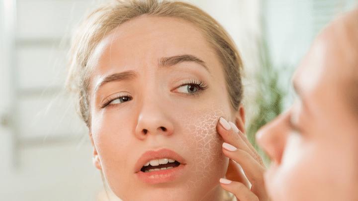 Biểu hiện của làn da rất khô