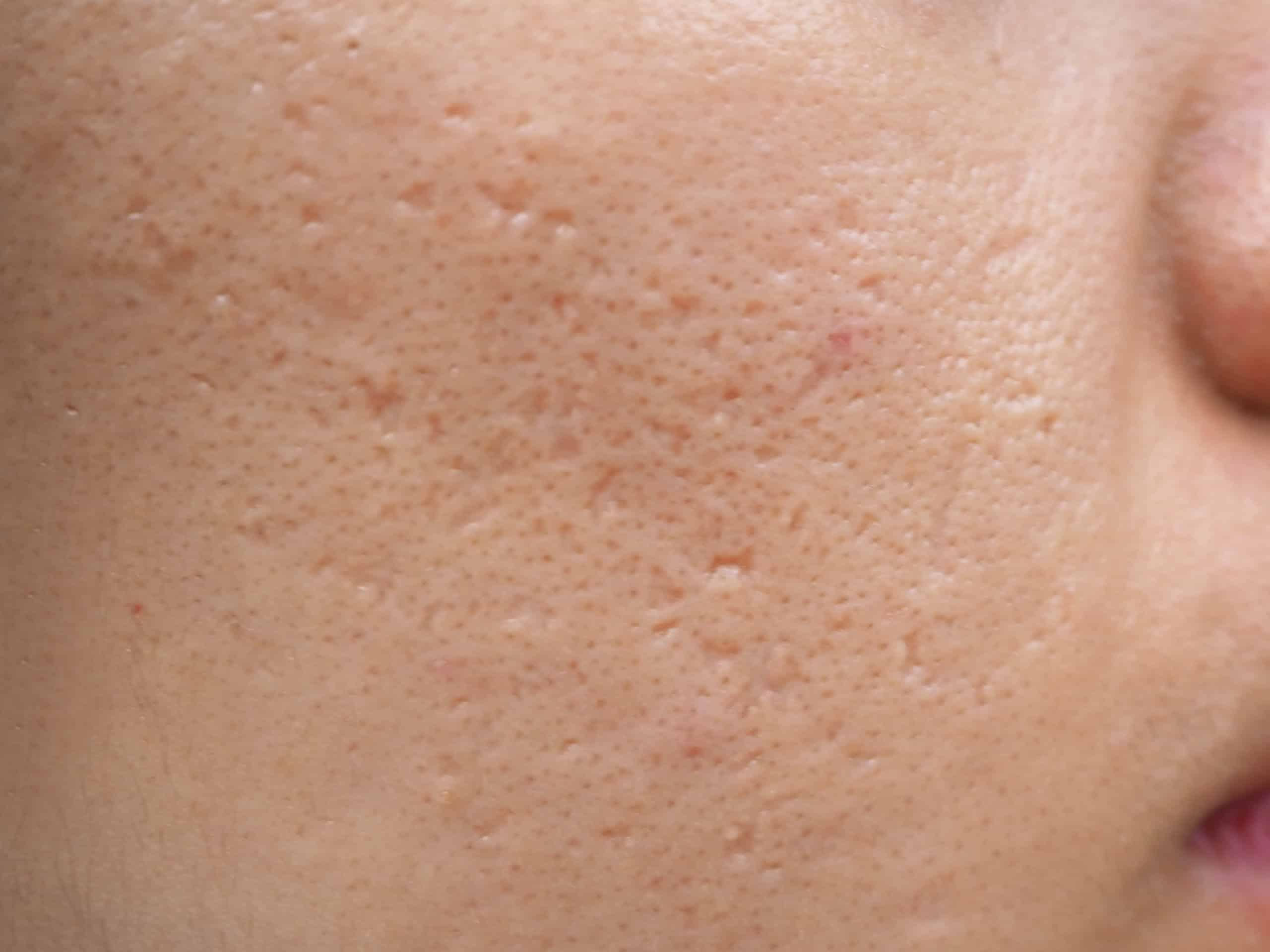 Thuốc Đông Y Trị Sẹo Rỗ Genie Hàn Quốc tái tạo tế bào da mới