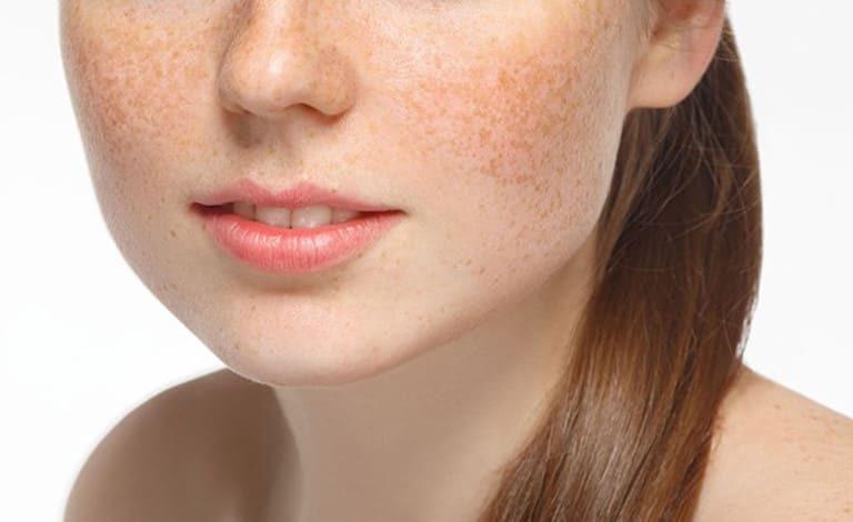 dưỡng da mặt với dầu dừa giúp giảm thâm nám