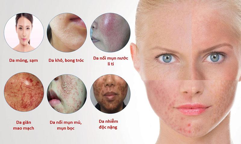Một khi da bị nhiễm corticoid sẽ cực kì khó chữa trị và tốn rất nhiều tiền và thời gian
