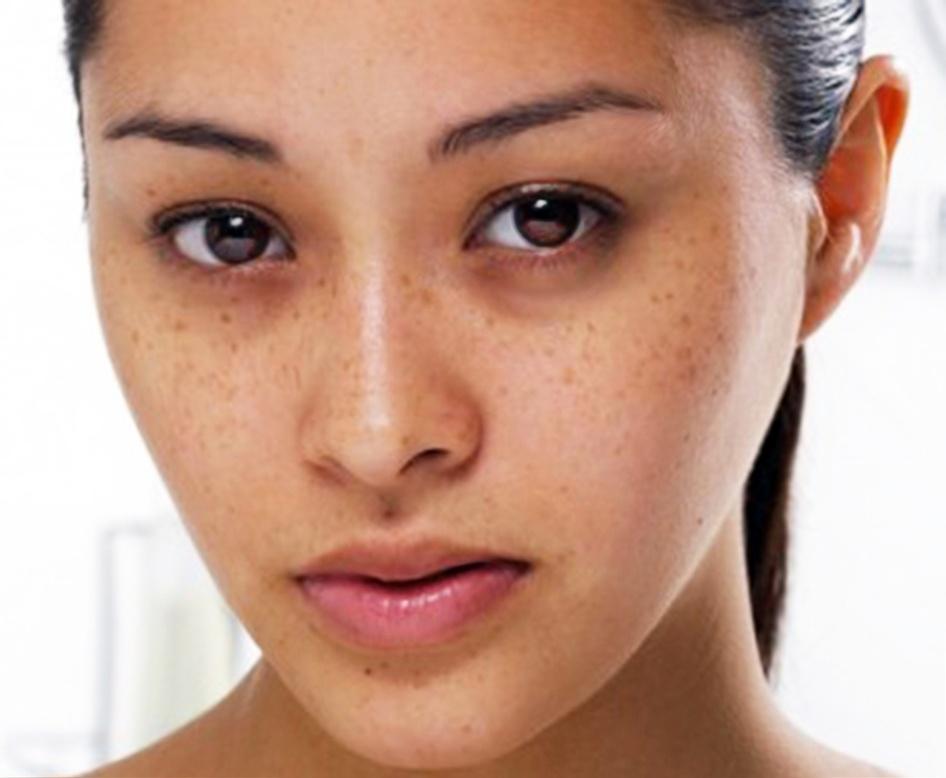 Biểu hiện của nám da - cách điều trị nám da hiệu quả nhất