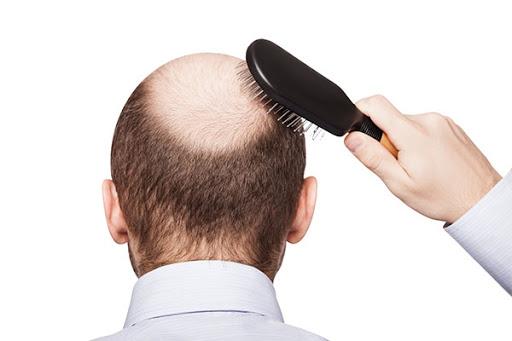 Cách kích thích tóc mọc dày trở lại
