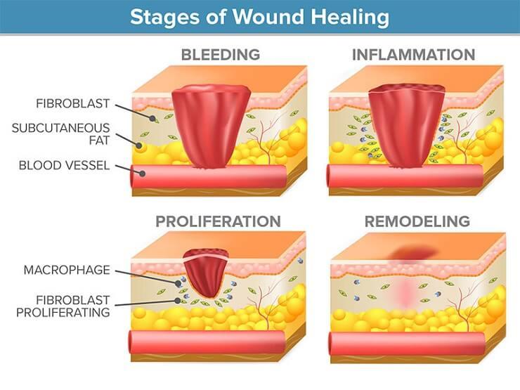 Các giai đoạn lành vết thương sau mổ