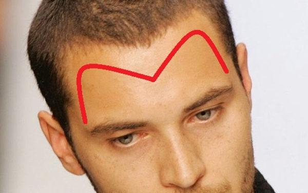 rụng tóc hai bên trán