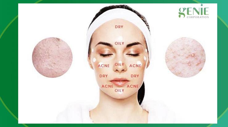 Phân biệt da nhạy cảm với da bị kích ứng