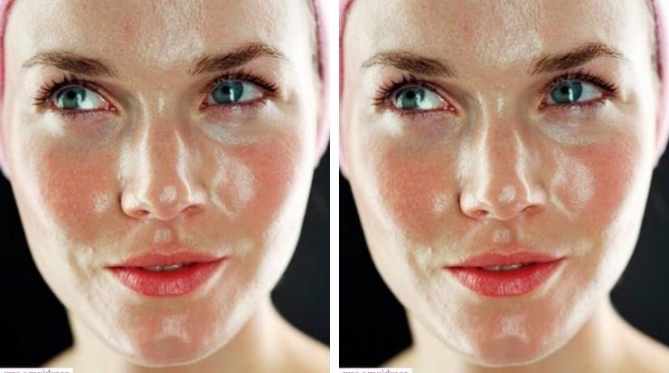 Cách nhận biết loại da mặt thuộc da dầu