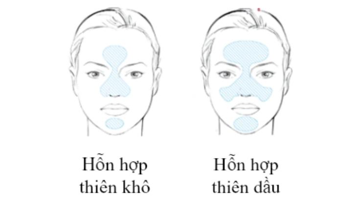 Cách phân loại da hỗn hợp