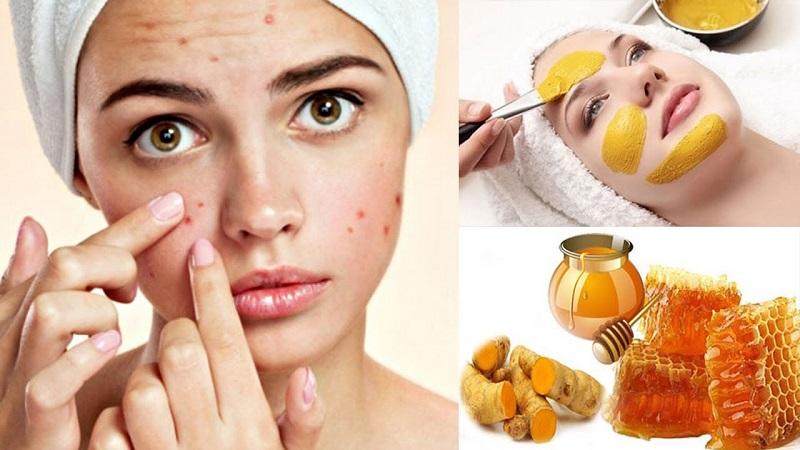 rửa mặt bằng mật ong trị mụn
