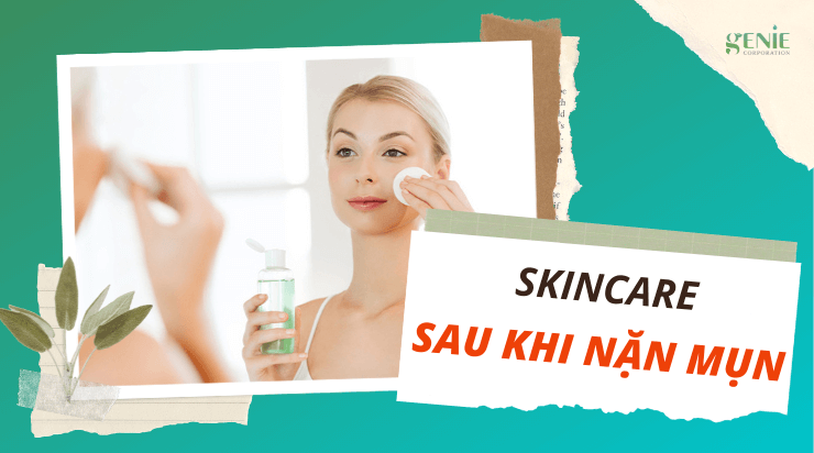 Skincare sau khi nặn mụn ĐÚNG CÁCH chăm sóc da CHUẨN SPA