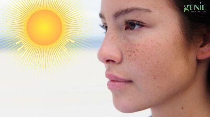 Tránh cho da tiếp xúc ánh nắng